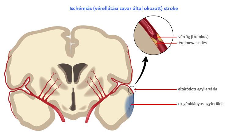 fájdalom a kézízületben stroke után