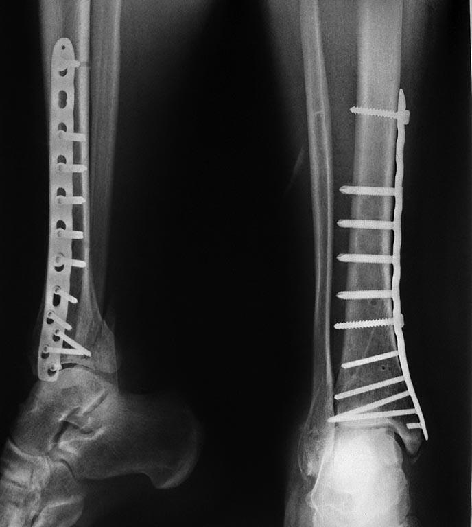 Az alsó lábszár törései után végzett rehabilitáció. Alig élő folyóirat