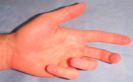 fájdalom az ujjak ízületeiben meghosszabbítás során