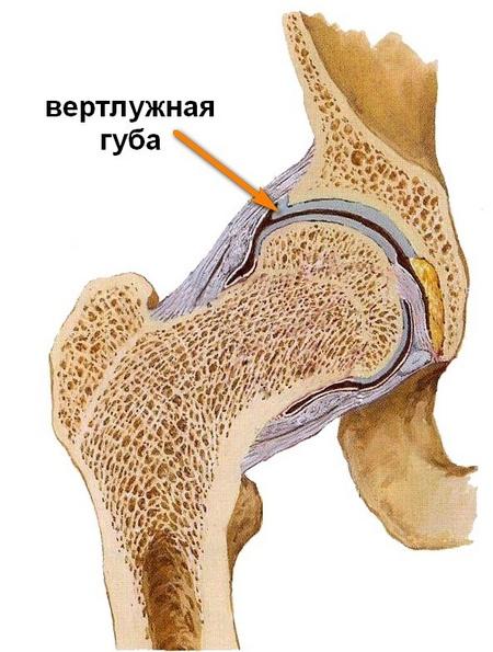 fájdalom, mint a csípőízület elmozdulása)