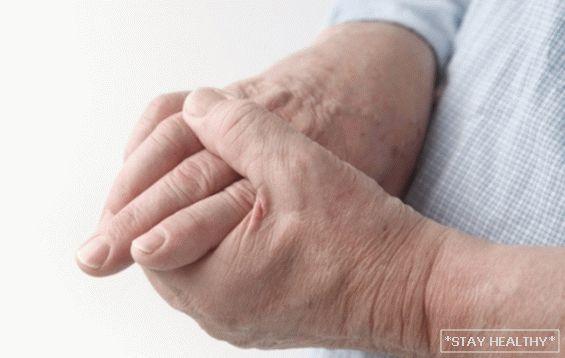 fájdalom és deformáció az ujjak ízületeiben)