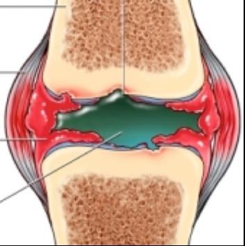 folyadék kezelése a csípőízületben közös carmolis kenőcs