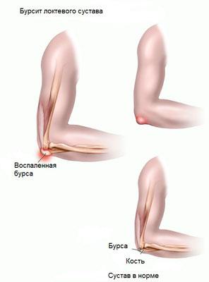 hogyan kell kezelni a könyökízület oldalsó epicondylitisét)