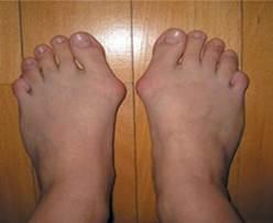 hogyan kezeljük a láb artrózisát 2 fokkal az ízületek fájnak, ha tüsszögnek