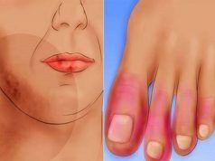 hogyan lehet gyógyítani az artritisz kezét