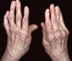 hogyan lehet érzésteleníteni a csípőízületet pszoriátás ízületi gyulladás esetén