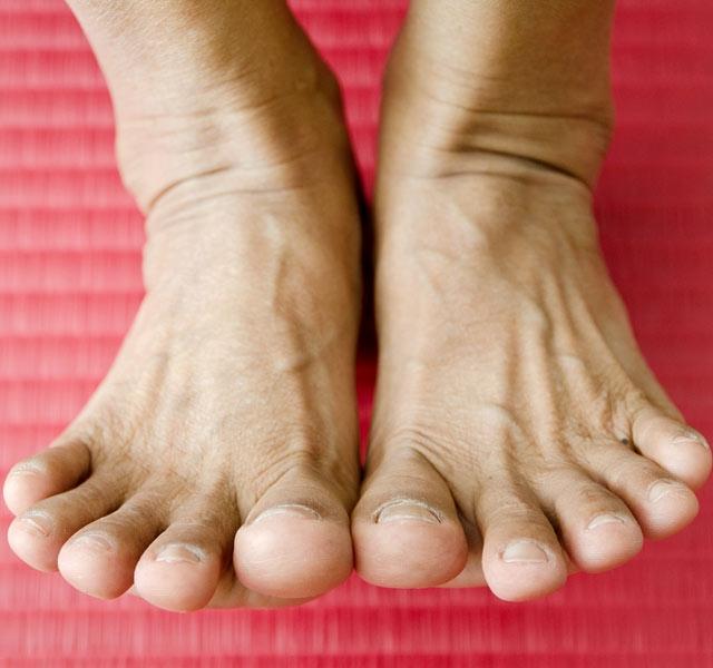 homeopátia a lábak ízületeinek fájdalmára)