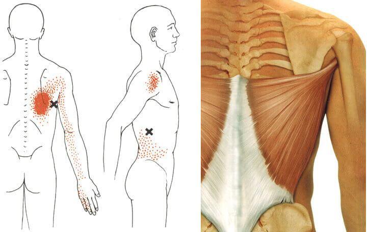 intervertebrális artrózis kezelési módszerek)