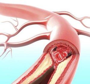 kalciumhiány és ízületi fájdalmak)
