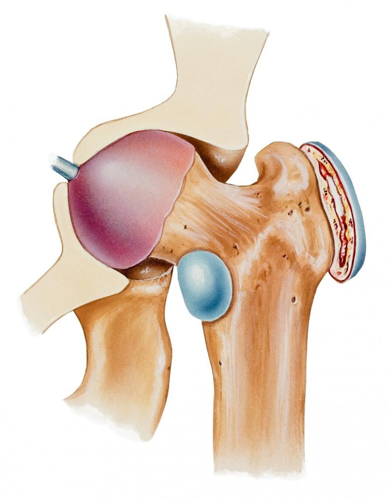 kanyargós kezelés. arthrosis
