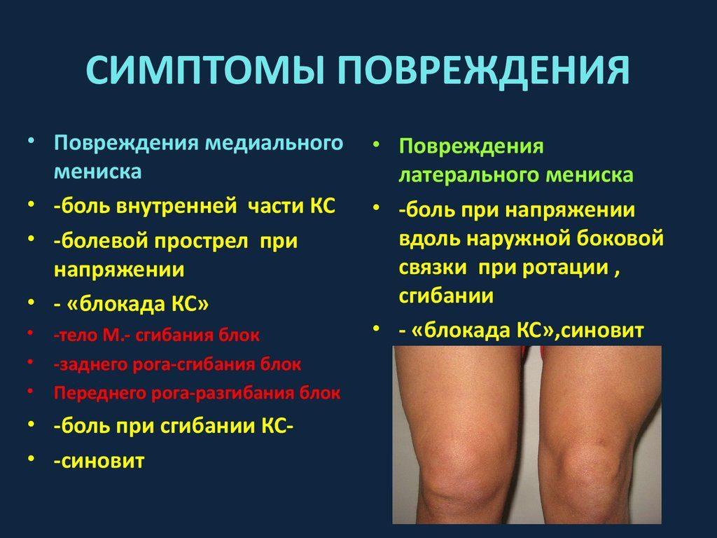 kenőcsök a térdízület meniszkuszának törésére)