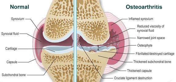 Az ízületek osteoarthritisa - tünetek, modern módszerek kezelése - Csukló July