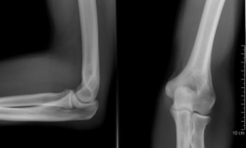 könyökízület monoarthritis kezelése a térdízület akut artrózisa 3 fok