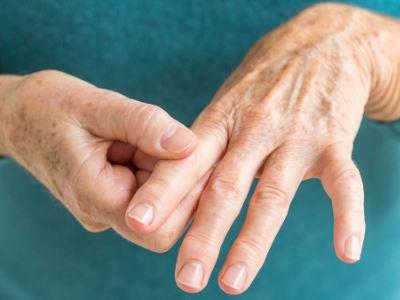 köszvényes kéz