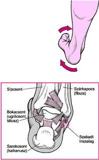 Külső bokacsont, lábfej fájdalma