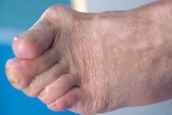 lábujjak artrózisának kezelésére szolgáló készítmények
