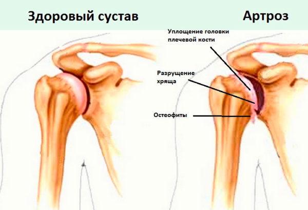 lehetséges melegedni a vállízület artrózisával