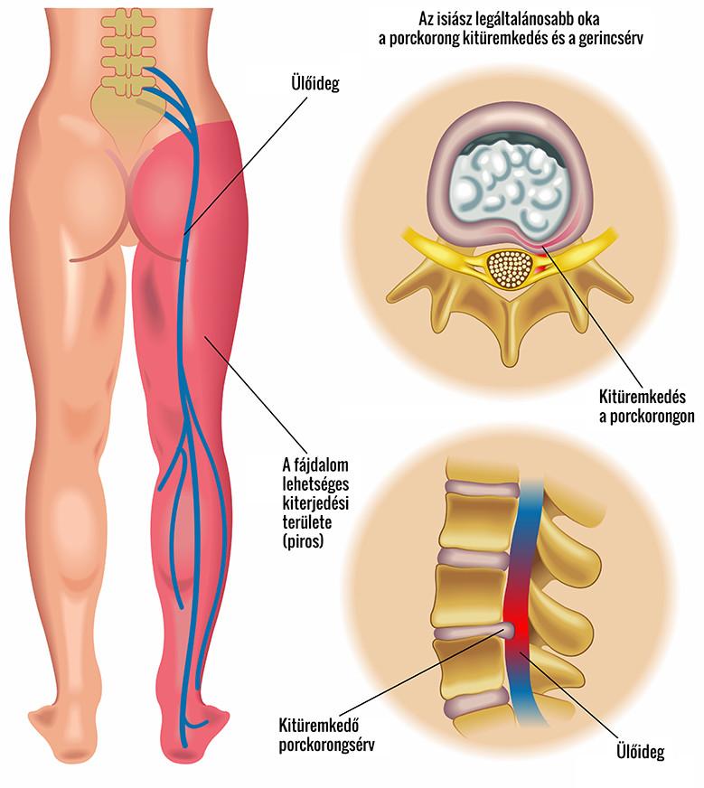 térdgyulladás 2 fok