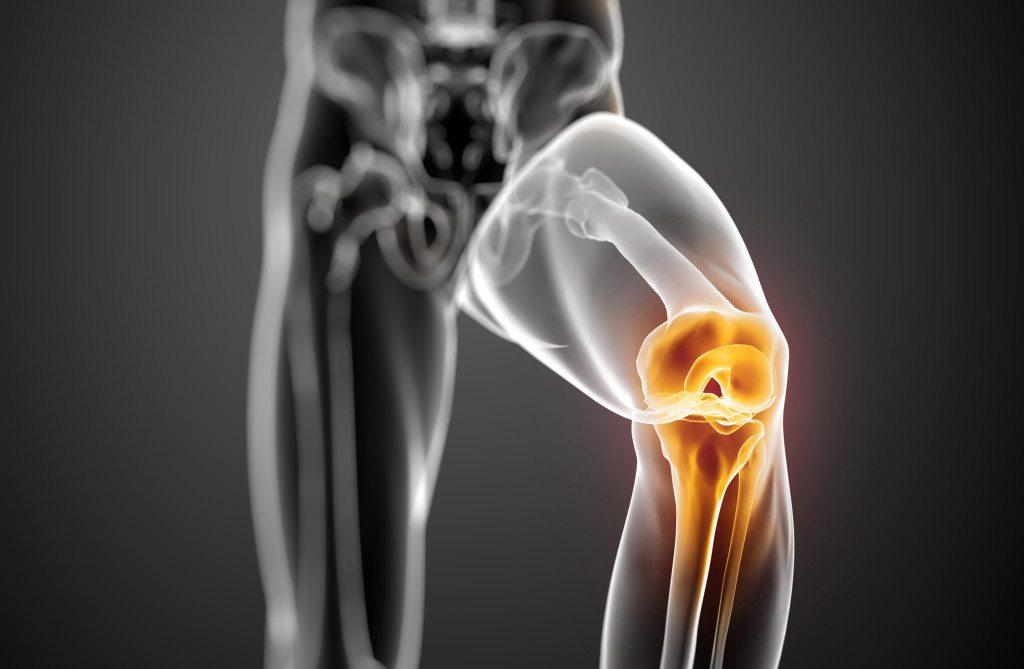 lézeres kezelés a térd artrózisában