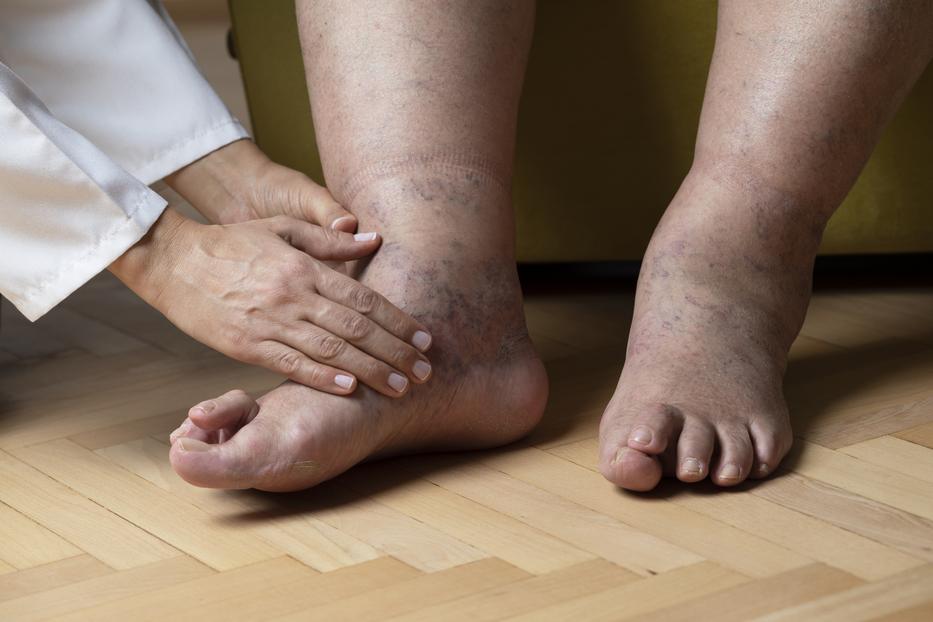 mert dagadt a lábad