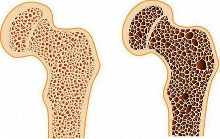 mi a csípőcsontritkulás kezelés