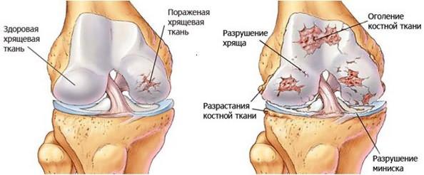 mi a térdízületi tünetek kezelésének szinovitisz)