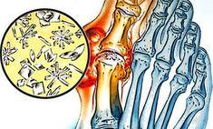 vállízület ízületi fájdalom por chondoprotektív készítmények ízületekre
