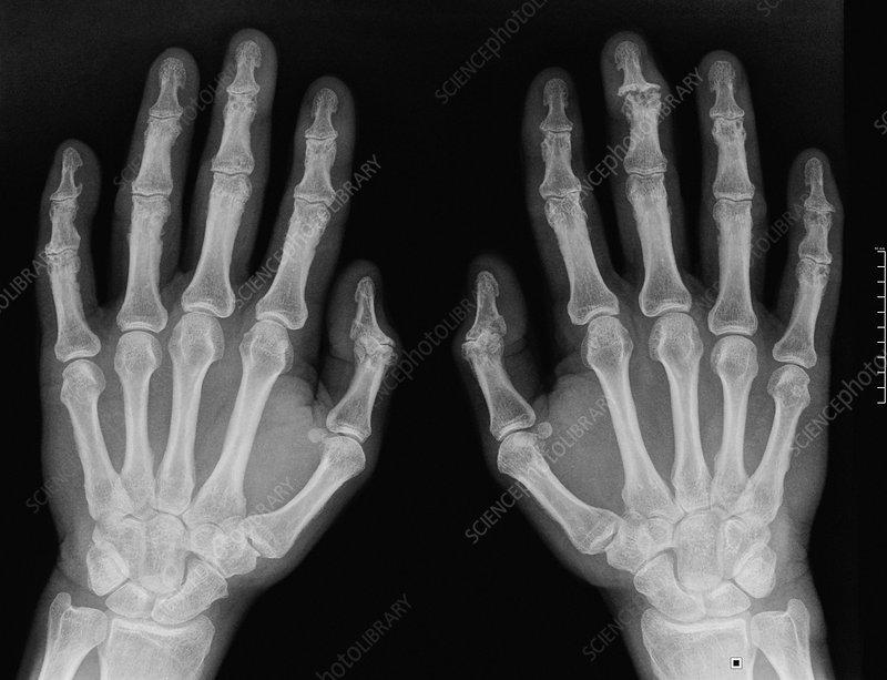 osteoarthritis radiology hand)