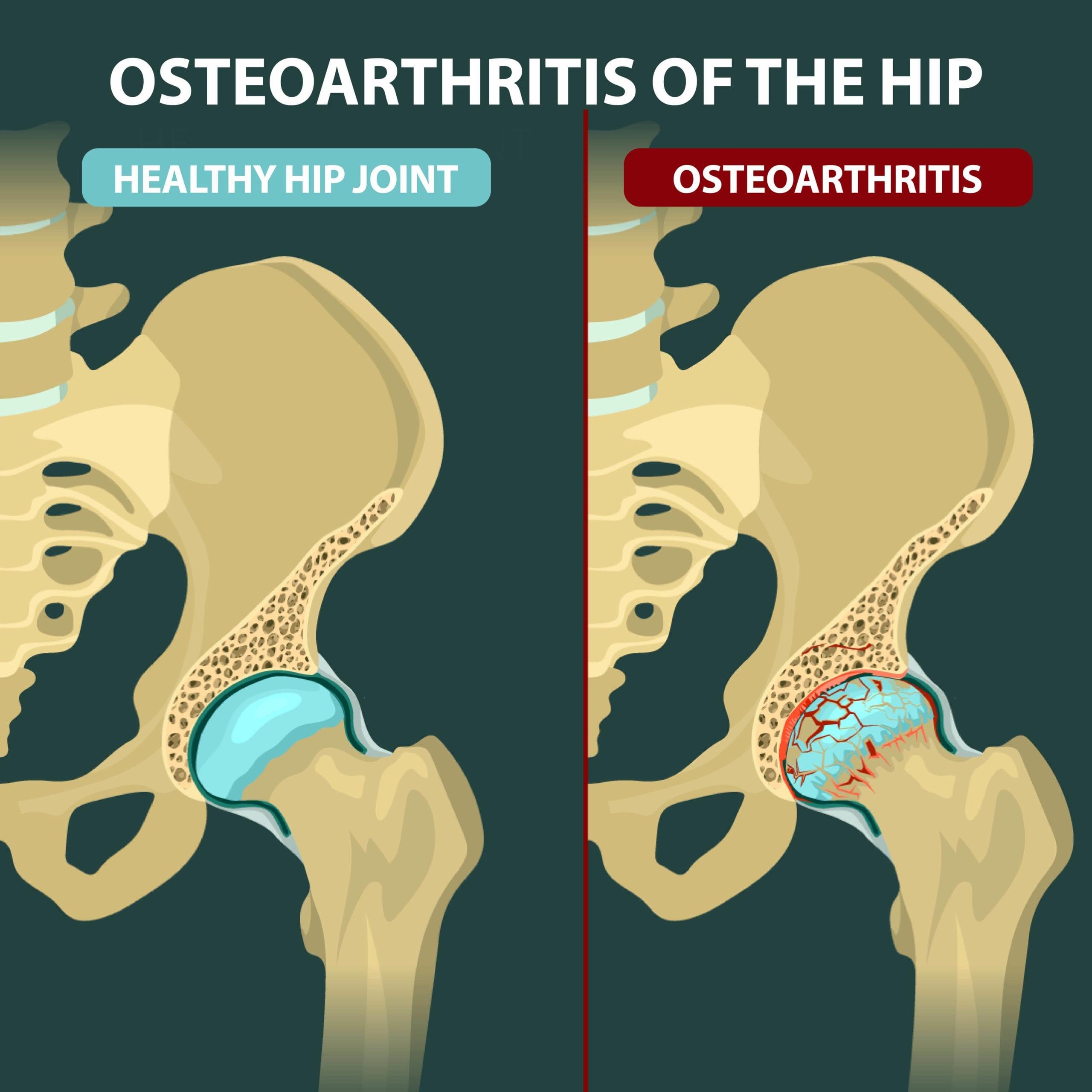 osteoarthritis symptoms hip)