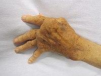 poszttraumás térdgyulladás