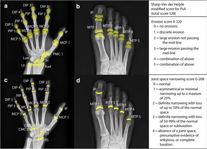 psoriatic arthritis radiology