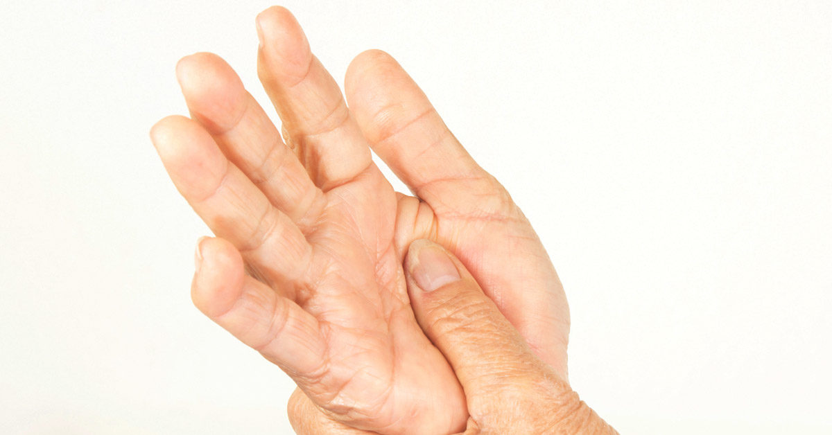 rheumatoid arthritis beginning stages
