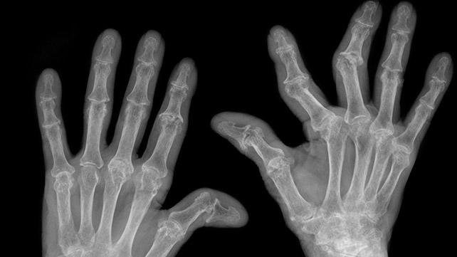 rheumatoid arthritis radiology findings