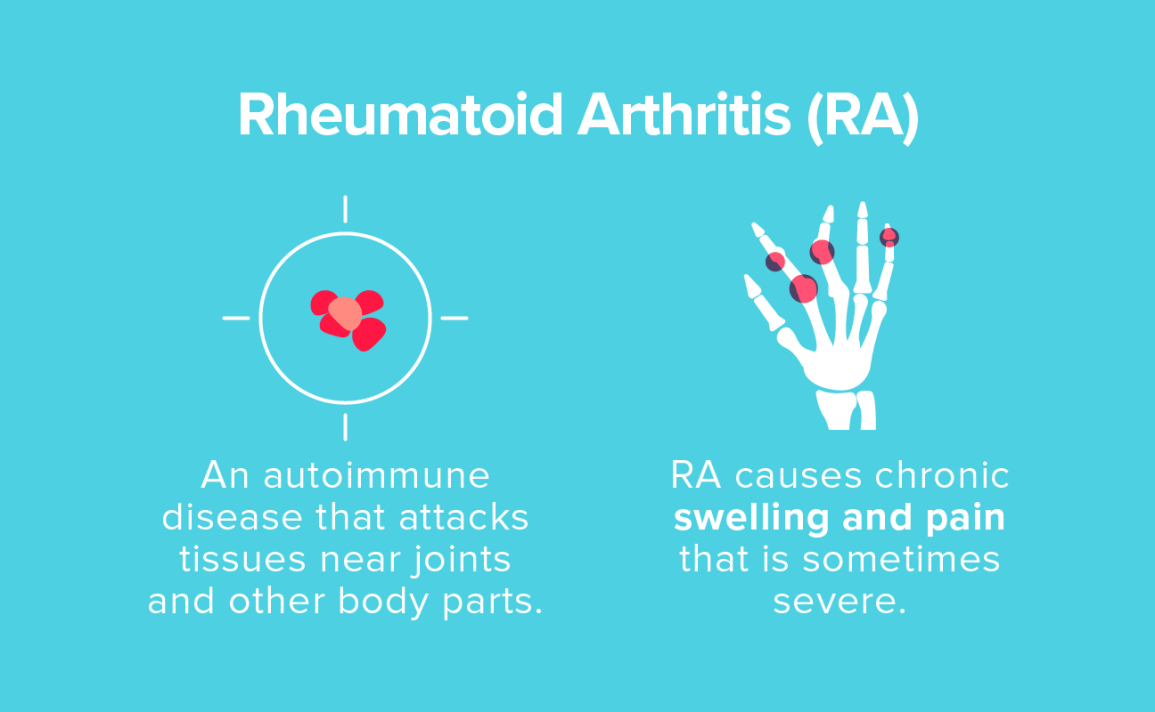 rheumatoid arthritis treatment 2020