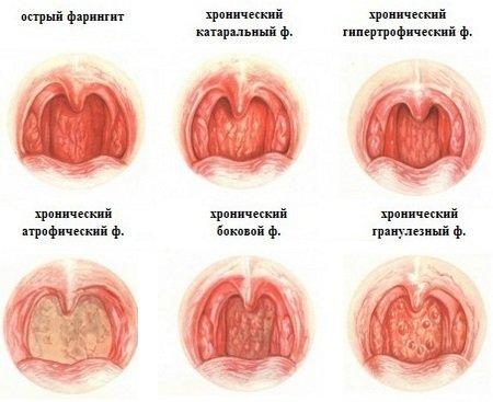 sarokgyulladás tünetei