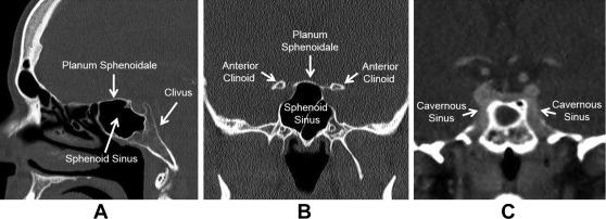 sphenoid ízületi arthrosis)