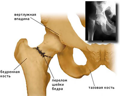 séta a csípőízület artrózisával 3 fokkal