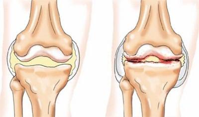 A boka ízületi gyulladása (boka): tünetek és kezelés, okok, a betegség leírása