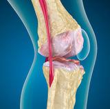 tompa és fájó térdfájdalom a csípőízületben a csípőízület kezelésének meszesedése