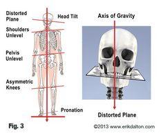 torna boka osteoarthritis kezelésére)