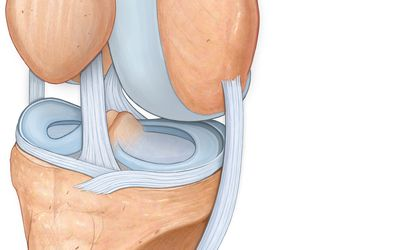 Meniszkusz-sérülés tünetei és kezelése - HáziPatika