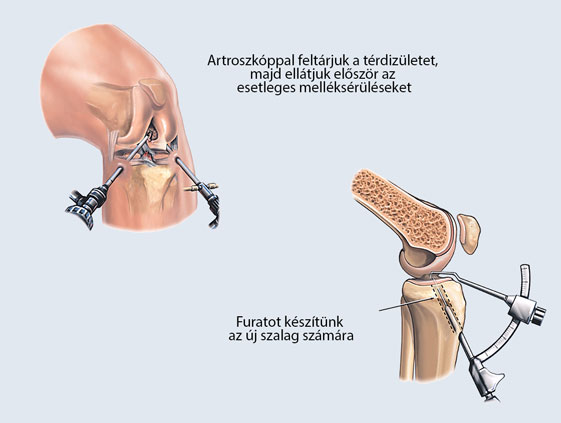térd műtét kezelése
