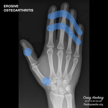 A köszvényes arthrosis tünetei és kezelési módjai