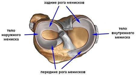 térdkészítmények osteoarthritis)
