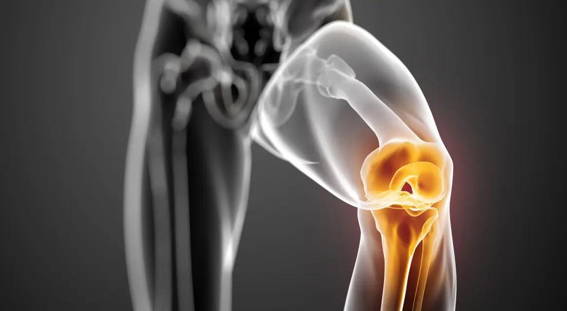 futás térdízületek fájdalmával torna ízületi gyulladás és ízületi gyulladás kezelésére