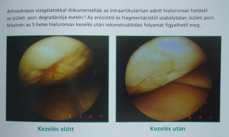 térdízületi kezelés és táplálás)