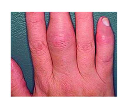 ujjak ízületi gyulladásának kezelése