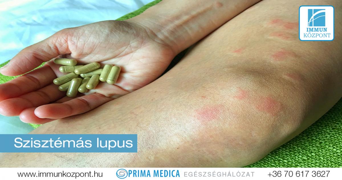 vasculitis ízületek kezelése)