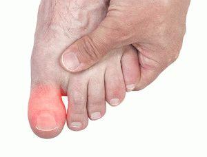 zsibbadt lábujjak térdízület gonarthrosis 2 fokos kenőcs