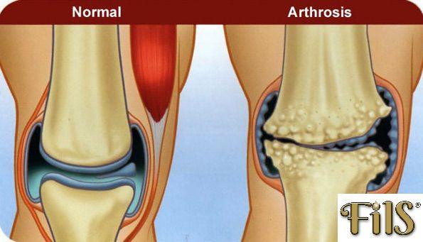 ízületi fájdalom hidegen a sérült térdszalagok javítása